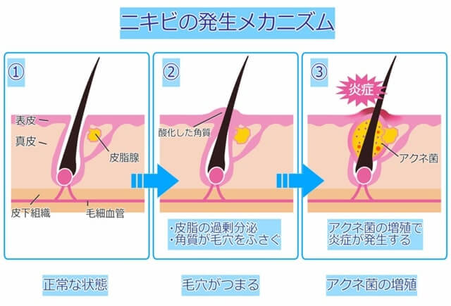 皮脂の過剰分泌が原因でニキビが発生する