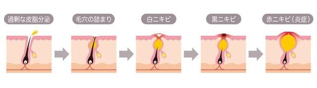 皮脂の過剰分泌を調節する